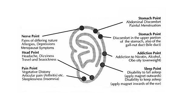 Magnetic Acupressure Weight Loss/Slimming Earrings Reviews